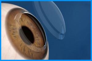 simulazione immagine cornea bioingegnerizzata