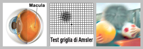 griglia di hamsler, esempio visione distorta